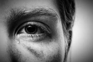 Image shows an adult male with a black eye and a tear rolling down his cheek.